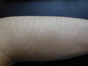 ミノキシジル使用前腕