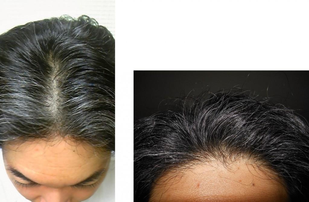 ミノキシジル使用5ヵ月後頭頂部生え際