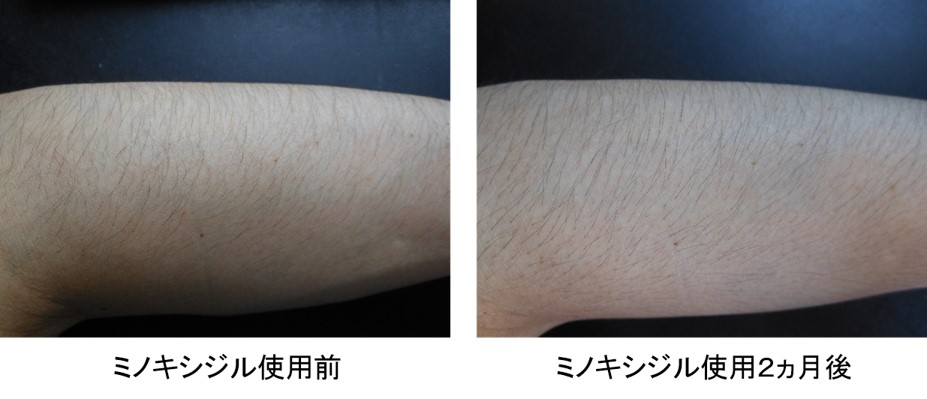 ミノキシジル使用2ヵ月後の腕