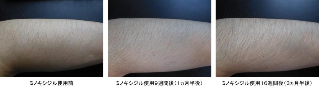ミノキシジル使用3ヵ月半後の腕の変化