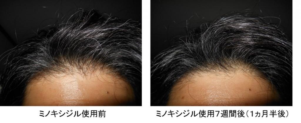 ミノキシジル使用1ヵ月半後の生え際の変化