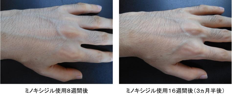 ミノキシジル使用3ヵ月半後の手の甲の変化