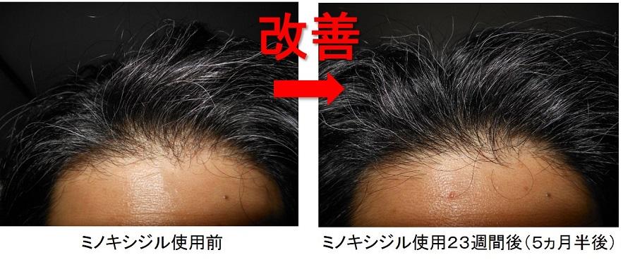 ミノキシジル使用5ヵ月半の生え際の変化
