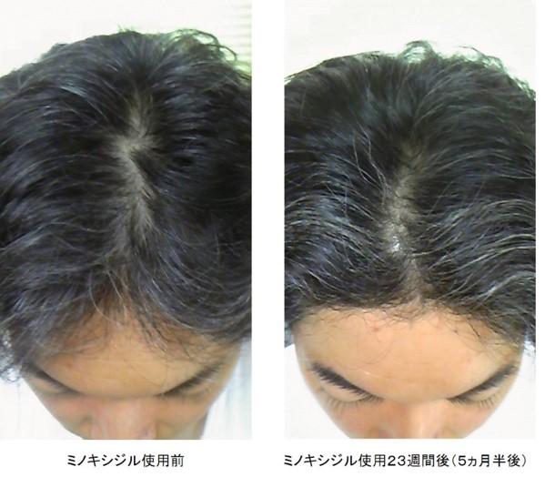 ミノキシジル使用5ヵ月半後の頭頂部