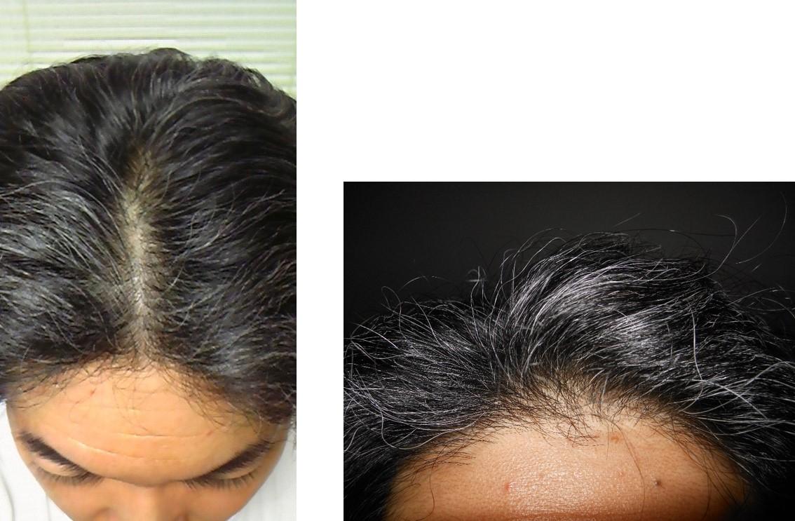 ミノキシジル使用6ヵ月後頭頂部生え際