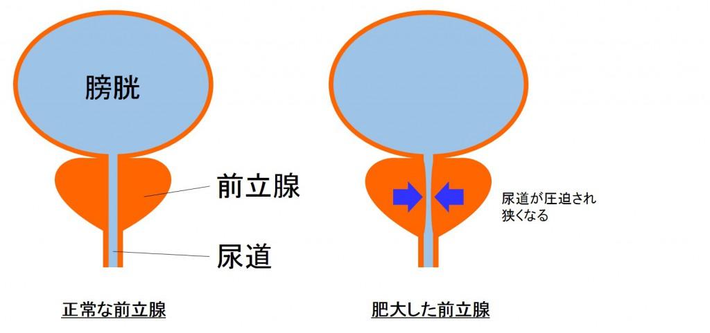 肥大した前立腺
