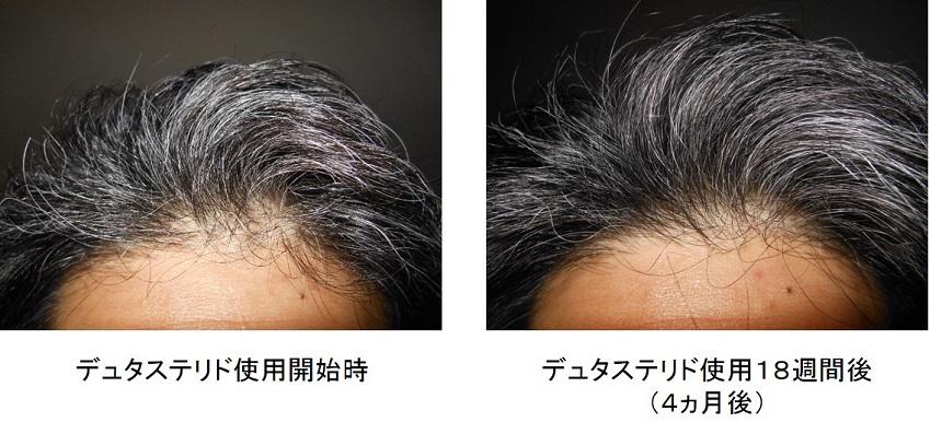 デュタステリド使用4ヵ月後の生え際の変化