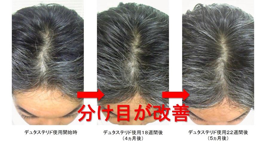 デュタステリド使用5ヵ月後の頭頂部