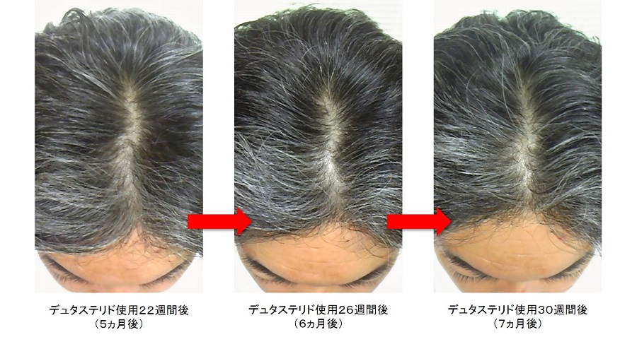 デュタステリド使用7ヵ月後の頭頂部の変化