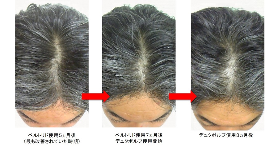 デュタボルブ使用3ヵ月後の頭頂部