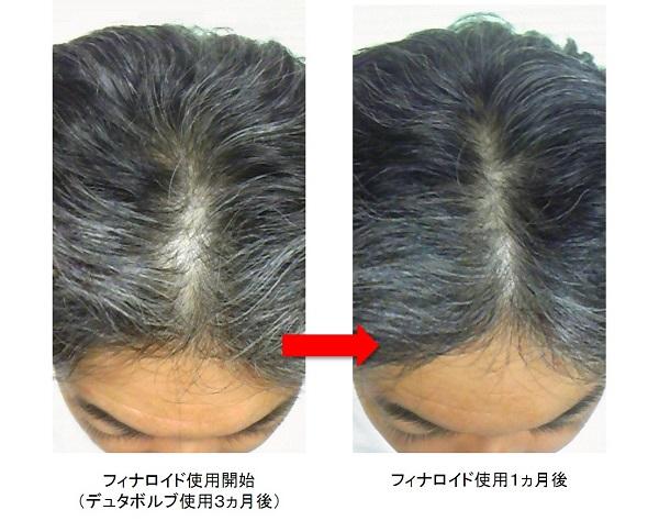 フィナロイド使用1ヵ月後頭頂部