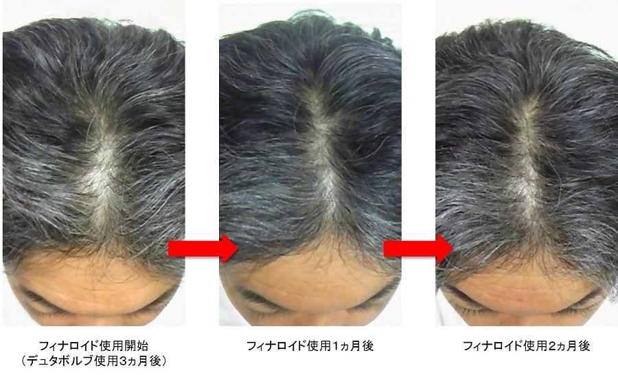 フィナロイド使用2ヵ月後頭頂部
