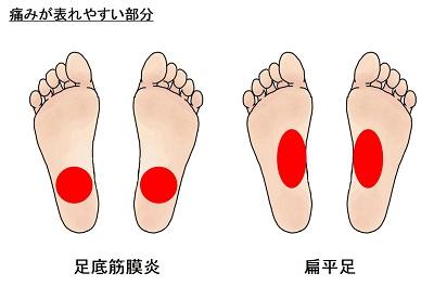 足の裏の痛みが表れやすい部分
