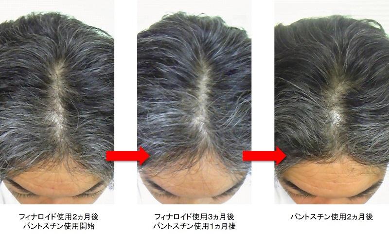 パントスチン使用2ヵ月後の頭頂部