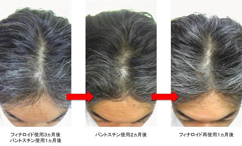 フィナロイド再使用1ヵ月後の頭頂部