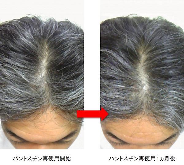 パントスチン再使用1ヵ月後の頭頂部
