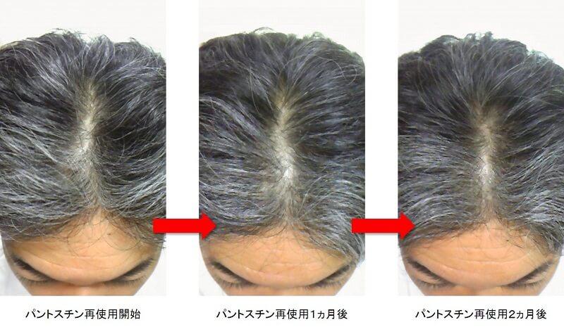 パントスチン再使用2ヵ月後の頭頂部