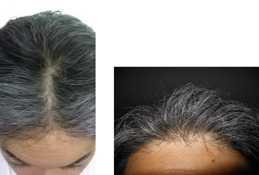リグロースラボSP2使用開始時頭頂部生え際